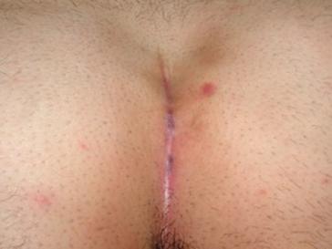 Immagine cisiti miniinvasiva guarigione